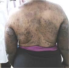 L'AIIDA s'attaque à la dépigmentation