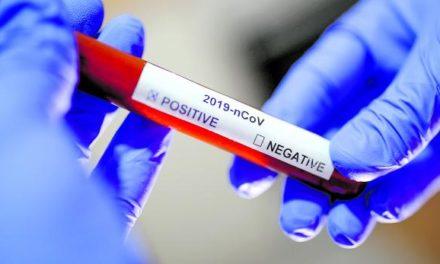 CORONAVIRUS AU SÉNÉGAL – 13 nouveaux cas, 123 sous traitement