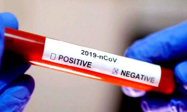 COVID-19 DGID – Les tests négatifs
