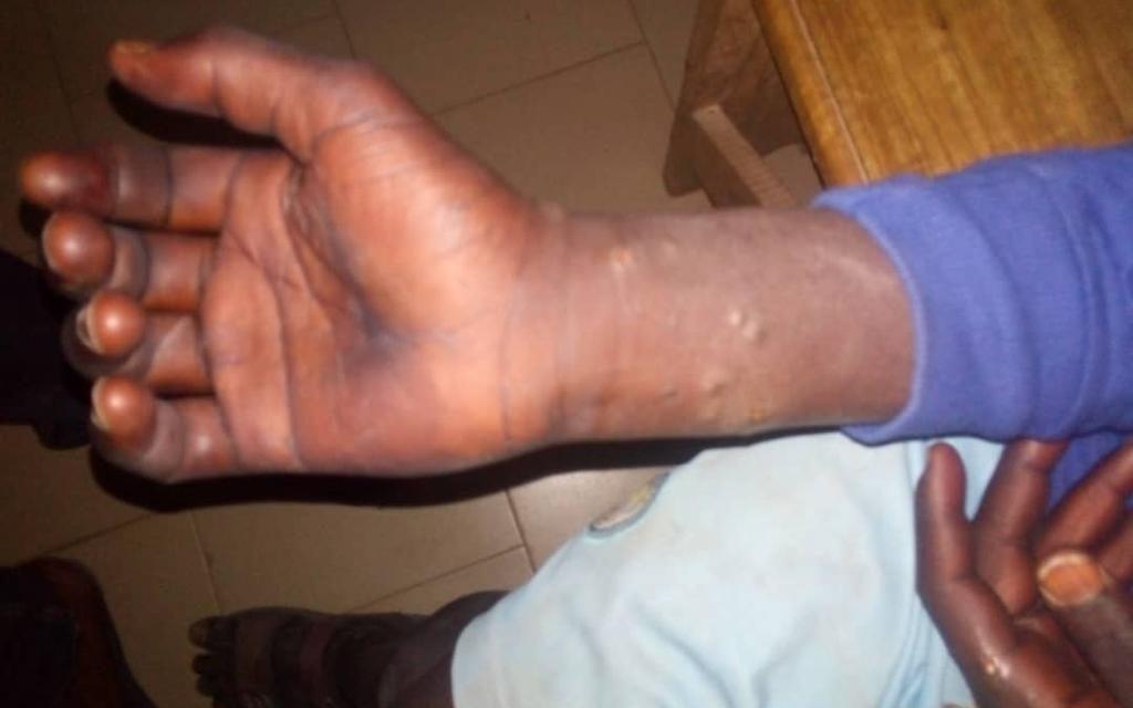 MALADIE MYSTÉRIEUSE- 260 personnes infectées à Thiès